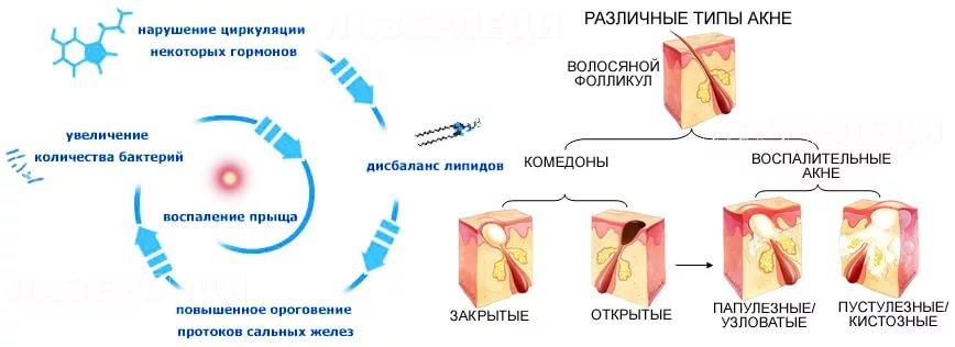 Акнеформные дерматозы
