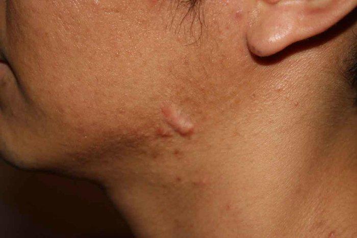 Возможные причины и лечение конглобатных угрей