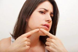 Угри на подбородке у женщин - причины, подкожные, внутренние, болючие