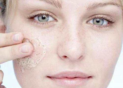 Прыщи на лице - причины возникновения у женщин, лечение
