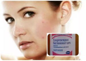 Хлоргексидин протирать лицо от прыщей отзывы