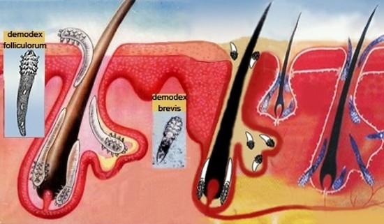 Демодекоз у человека на лице – фото, лечение, симптомы