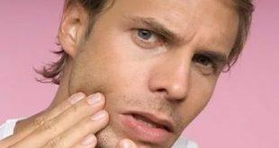 Прыщи на подбородке у мужчин: причины, почему появляются, лечение