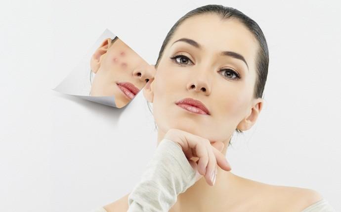 Уход за кожей склонной к акне – жирной, комбинированной, чувствительной, проблемной