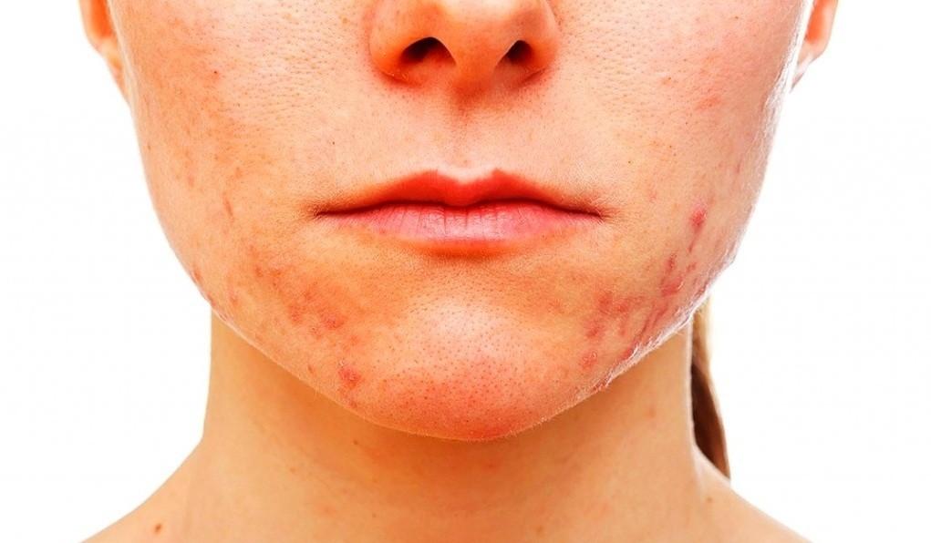 Гормональные прыщи у женщин – как лечить, на лице, причины