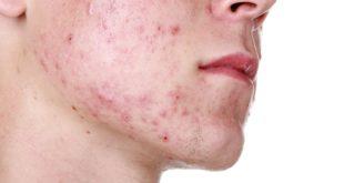 Воспаленные прыщи на лице – причины, лечение, маски, мазь