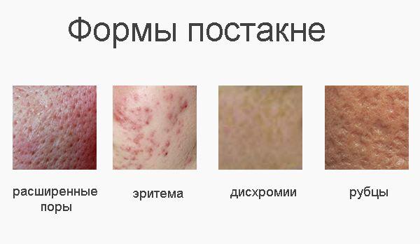 Крем от следов от прыщей – на лице, от шрамов, рубцов, пятен