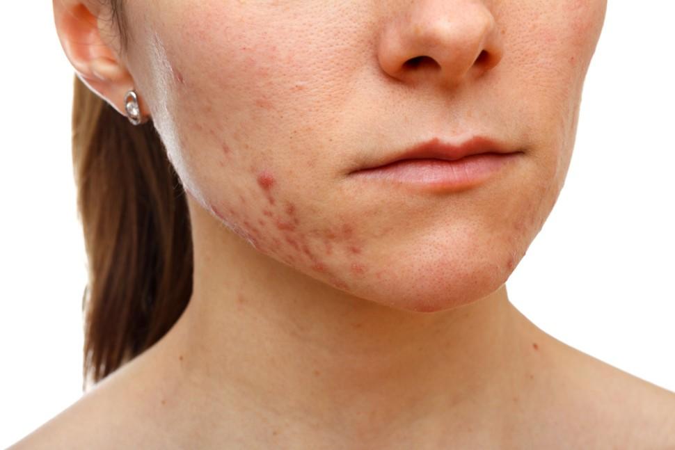 Прыщи на щеках - у женщин, у девушек, причина, как избавиться