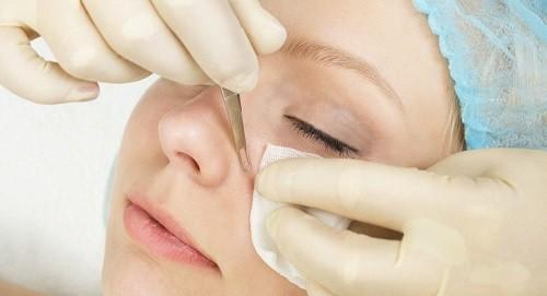 как очистить лицо от угревой сыпи