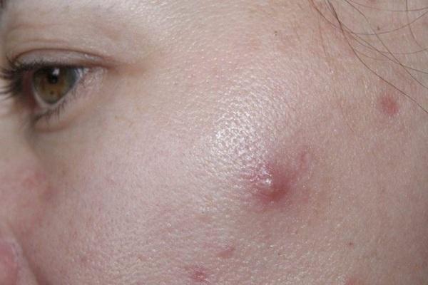 Как выглядит фурункул на лице
