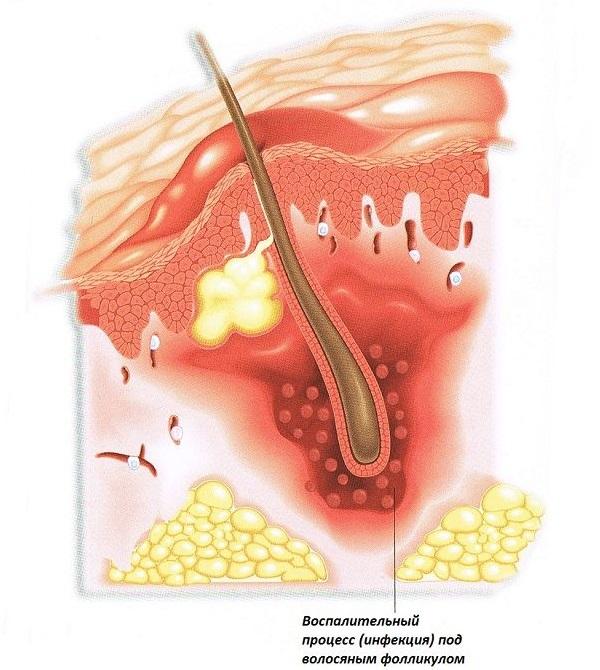 Визуализация абсцедирующего фурункула
