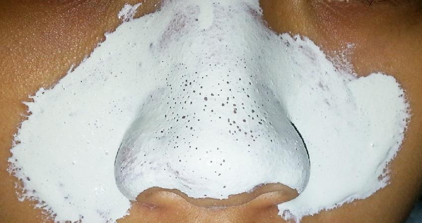 Применение соды от черных точек