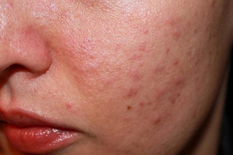 Аллергия у женщины