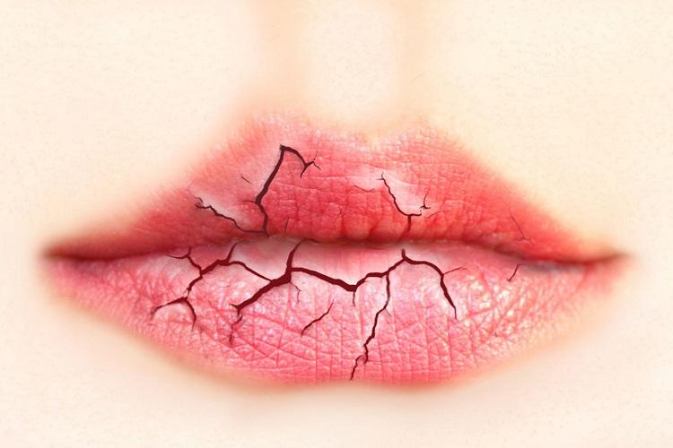 Трескающиеся губы